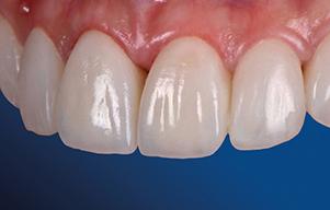 Aidite image perfect shiny teeth