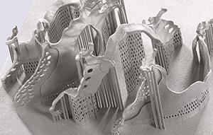 Concept Laser partial denture