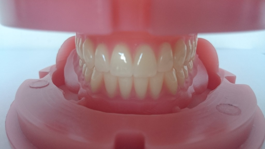 Milled full dentures