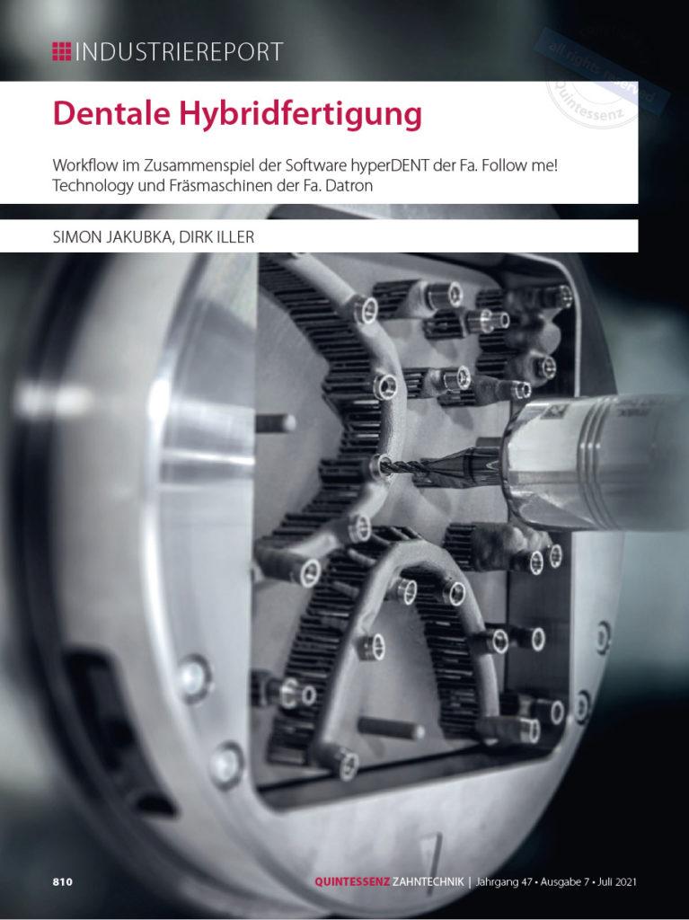 Industriereport: Dentale Hybridfertigung (Quintessenz, Juli 2021)
